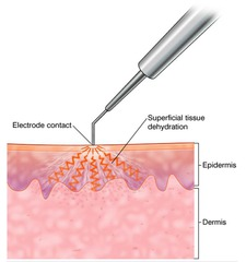 Electrodessication