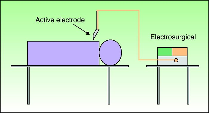 In Fulguration Configuration, the electrode does not touch the skin or tissue and once the spark occurs the current flows from the tip of the electrode down to earth following the path of least resistance.