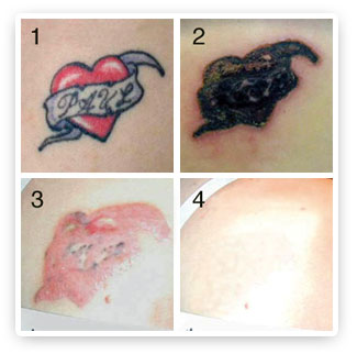 Saline Tattoo Removal ~ best tattoo removal at home