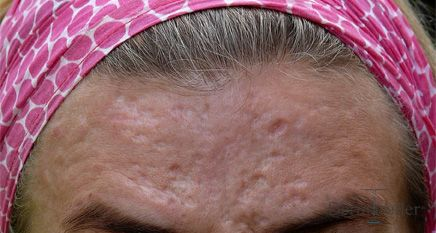 acne-scars-before-treatment