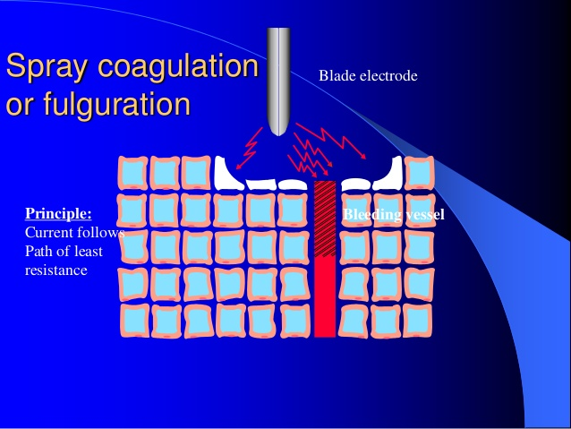 Electrofulguration to stop minor bleeding, used in medicine is usually referred to as electrocoagulation.