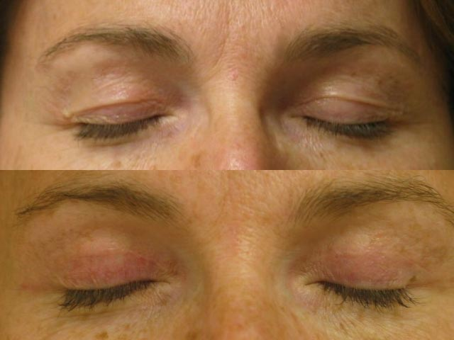 eyelid tightening
