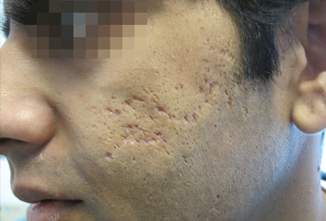 Severe Acne Scars Treatment Atrophic Scar A...
