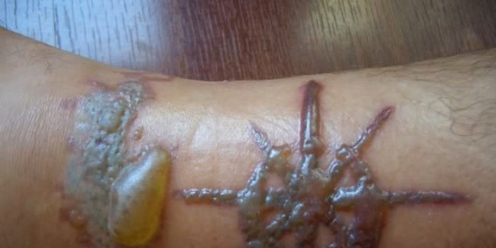 laser-tattoo-removal-blisters-