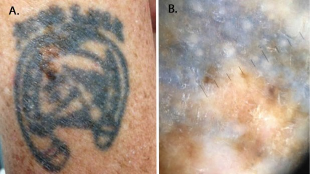 melanoma tattoo