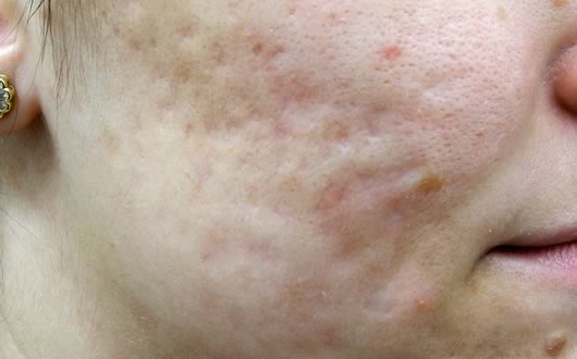 how to clear up chicken pox scars