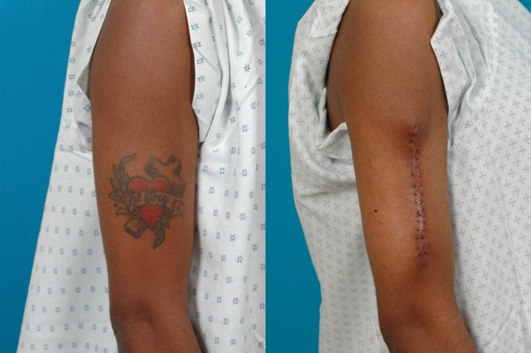... tattoo excision. The practitioner removes the tattoo using a scalpel
