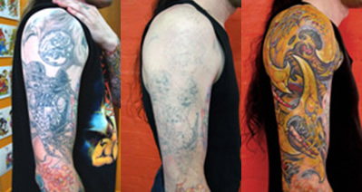 tattoo-removal-and-coverup