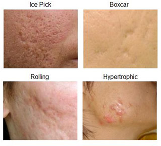 types of scars1