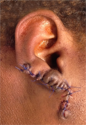 Keloid excised surgically