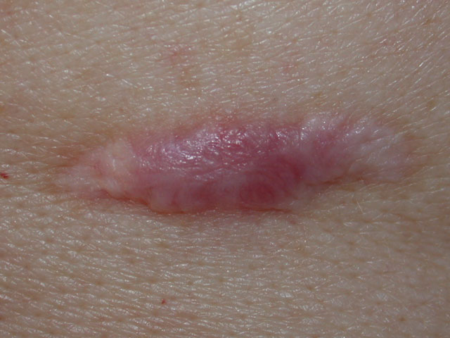 Example of Hypertrophic scar. This is a fresh scar developed during the healing process. This scar will progressively reduce in size over time.
