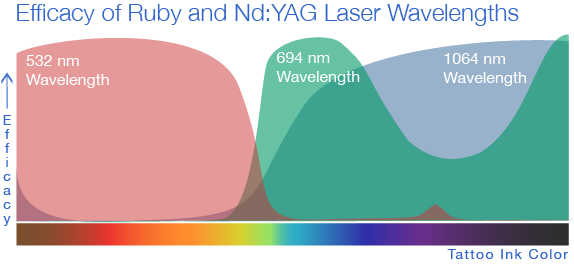 Laser-Tattoo-Removal-Wavelength