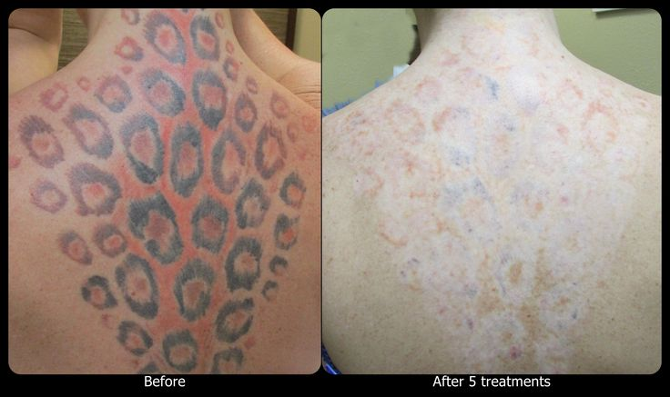 Laser tattoo removal voltaicplasma areton ltd for Tattoo laser removal on black skin