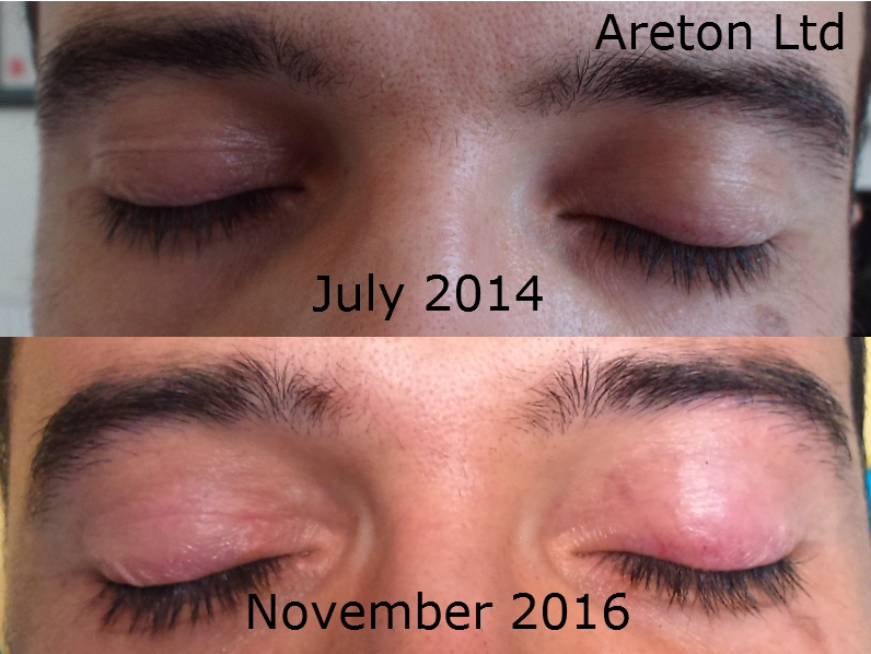 Andreas Both Eyes Eyelid Tightening Before and After for publication