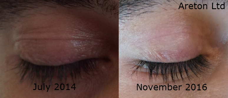 Andreas right eye eyelid tightening