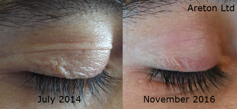 Andreas right eye eyelid tightening1