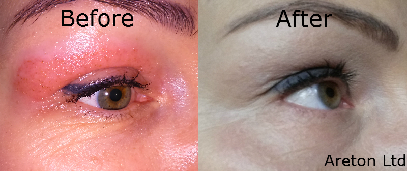 Lower eyelid tightening2