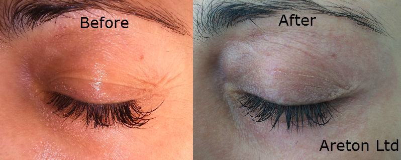 Upper eyelid tightening before and after for publication 3