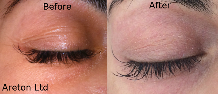 upper and lower right eyelid before and after for publication (2)