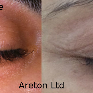 upper and lower right eyelid before and after for publication
