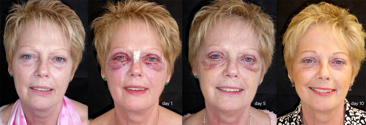 Blepharoplasty progression