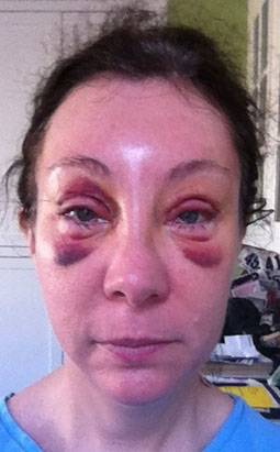 How-long-to-recover-from-blepharoplasty-bruising