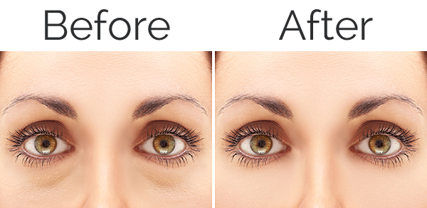 blepharoplasty_before_after