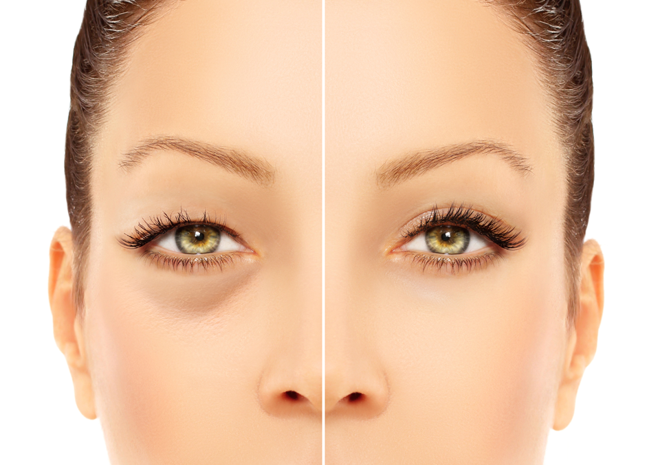 Eyelid Tightening Aftercare Voltaicplasma Areton Ltd